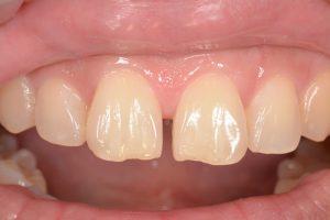 前歯のプラスチック治療