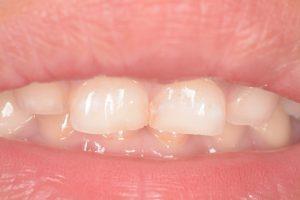 子供の虫歯治療(前歯)-2