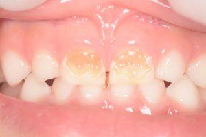子供の虫歯治療(前歯)-1