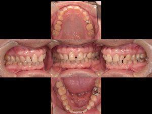歯周病治療(口腔内写真)