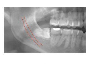 麻痺 親知らず 親知らず、抜歯すると、神経が麻痺する?|予約/新百合ヶ丘歯医者21時まで