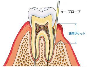 歯茎の中の歯石